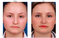 Rhinoplasty Enhances Your Appearance: Post Op Cares Should Be Followed