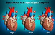 Things You Need To Be Aware About a Heart Bypass Surgery?
